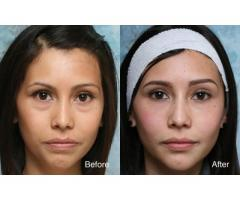 Eyebag removal surgery from BUEC Singapore